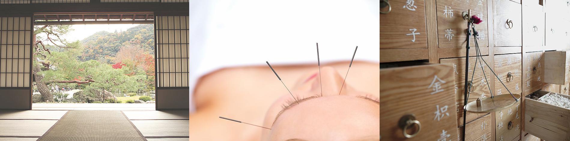 acupunctuur in Amstelveen